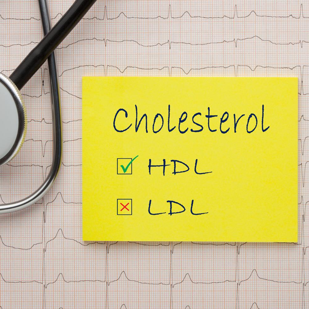 """Colesterolul """"bun"""" – HDL"""